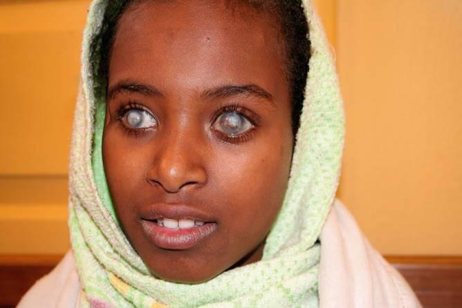 Девушка ослепла из-за нехватки витамина А