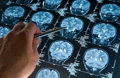 Фото. Съемка мозга