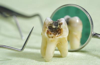 зубы и раковая смертность