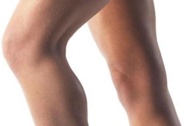 гонартроз голени