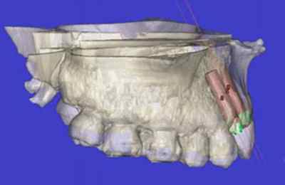 зубной имплатат в 3Д