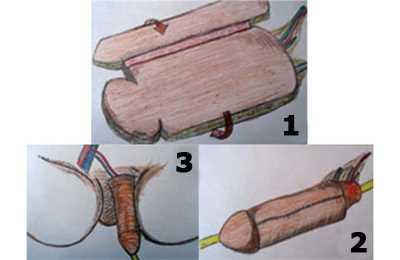 реконструкция пениса