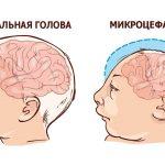 микроцефалия у ребенка