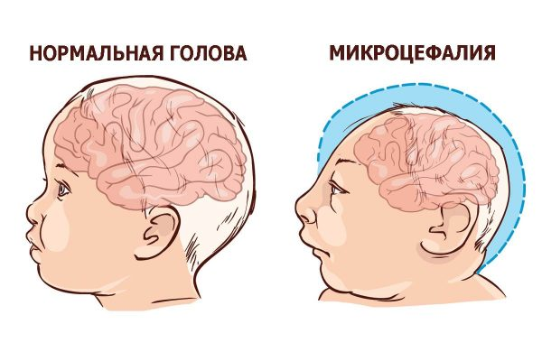 ребенок с микроцефалией